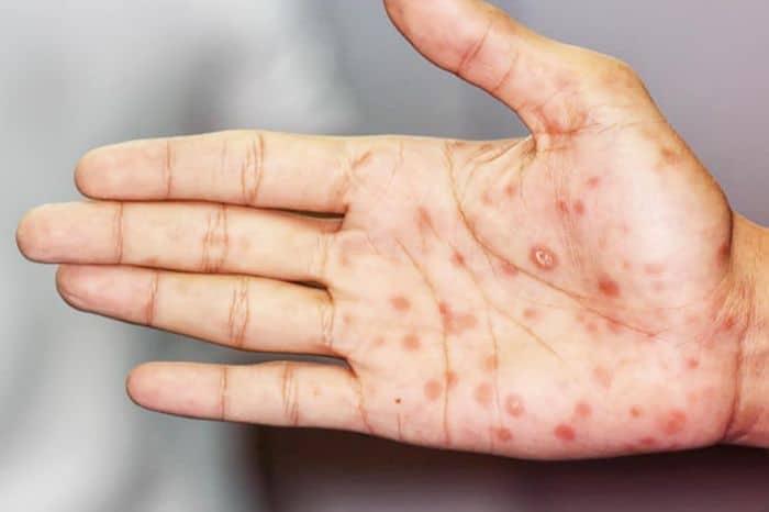 Bệnh giang mai là do vi khuẩn giang mai gây nên