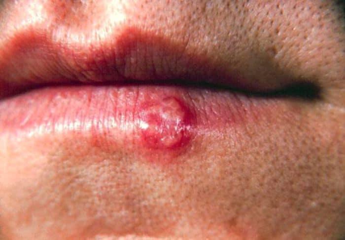 Người bị Herpes simplex virus (HSV) sẽ thường bị đau ở vùng sinh dục ngoài