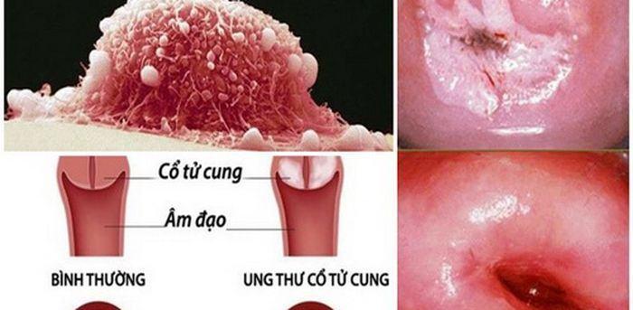 Ung thư cổ tử cung được xem là bệnh nguy hiểm và phổ biến ở nữ giới